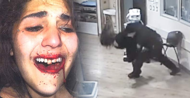 Police Slams 12 Year Old Girl