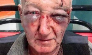 Derek Laidlaw was repeatedly punched in the face and head. Photograph: Greater Manchester police/PA