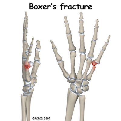 Right Ring Finger Fracture Icd