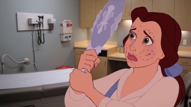 disney film movie cartoon beauty beast surgery Antoinespeaks